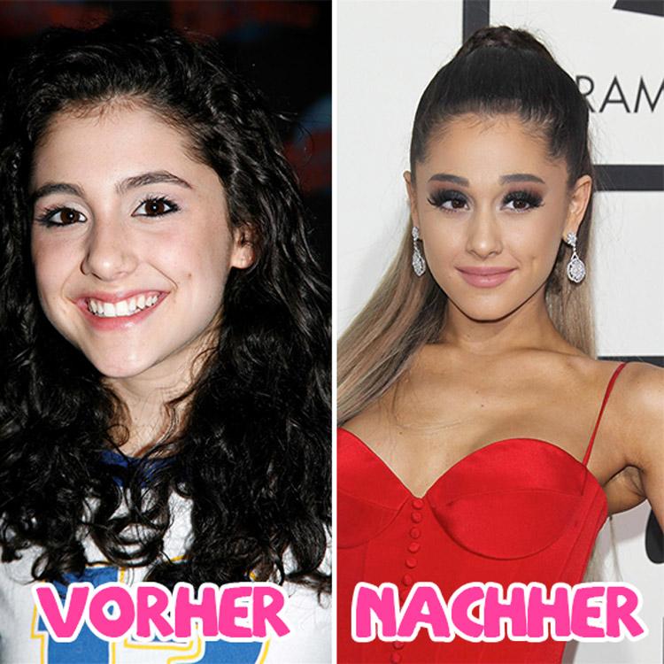 Ariana Grande Beauty OP Vorher Nachher