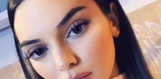 Kendall Jenner bekommt einen Shitstorm nach ihrer Beauty-OP
