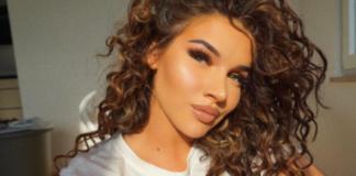 Shirin David hat eine weitere Beauty-OP hinter sich