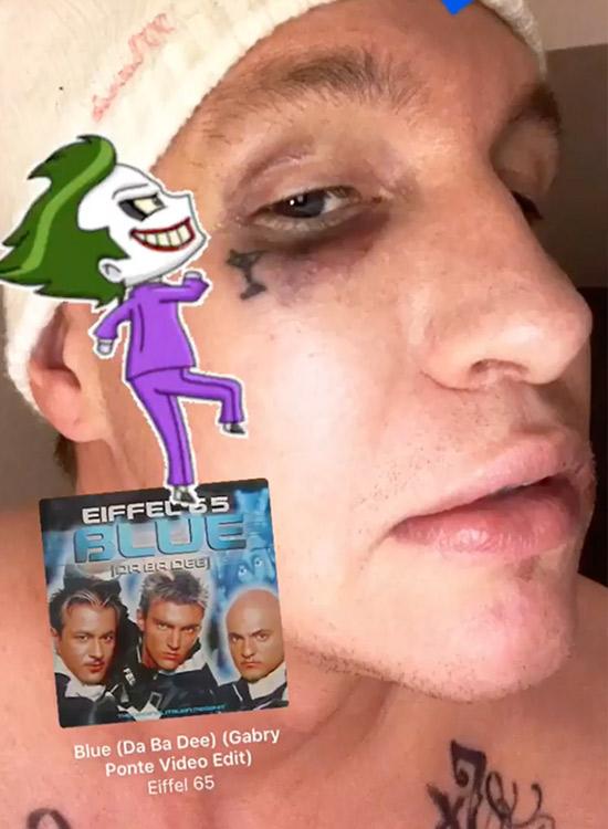 Stolz zeigt Felix Krull sein von Capital Bra verpasstes blaues Auge. Foto: Instagram